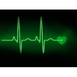 EKG holteri