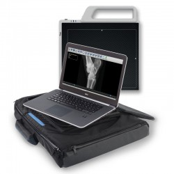 Sound SPRINT BOLT portatīva digitālās radiogrāfijas sistēma